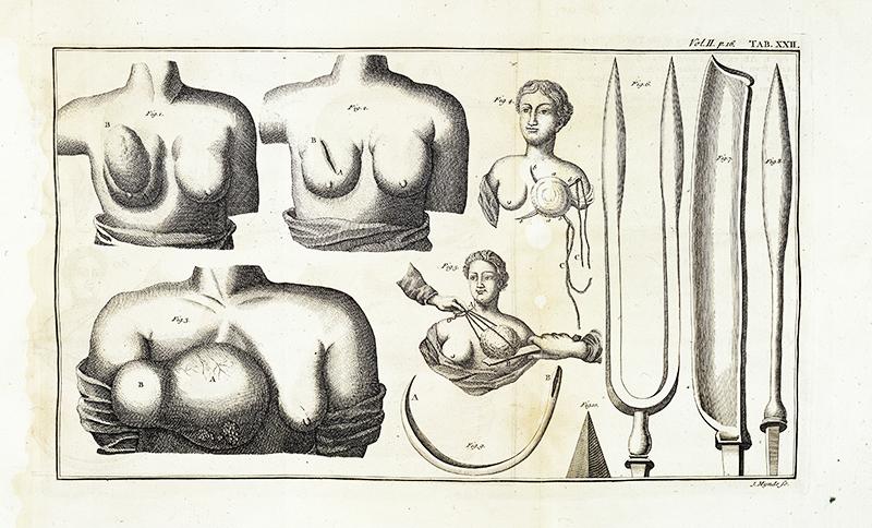 Lorenz Heisterin teos Latent or Occult Breast Cancer kuvaa 1700-luvun alussakin vielä käytössä ollutta leikkaustekniikkaa ja instrumentteja. Wellcome Images.